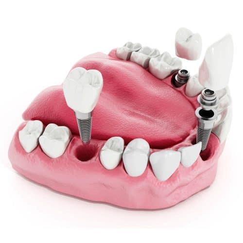 dental-implants-vs-dentures-st-louis