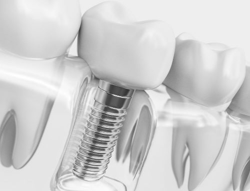 The Effect of Crown-to-Implant Ratio on the Clinical Outcomes of Dental Implants: A Systematic Review