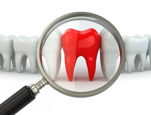 The Pros And Cons of Removing Wisdom Teeth