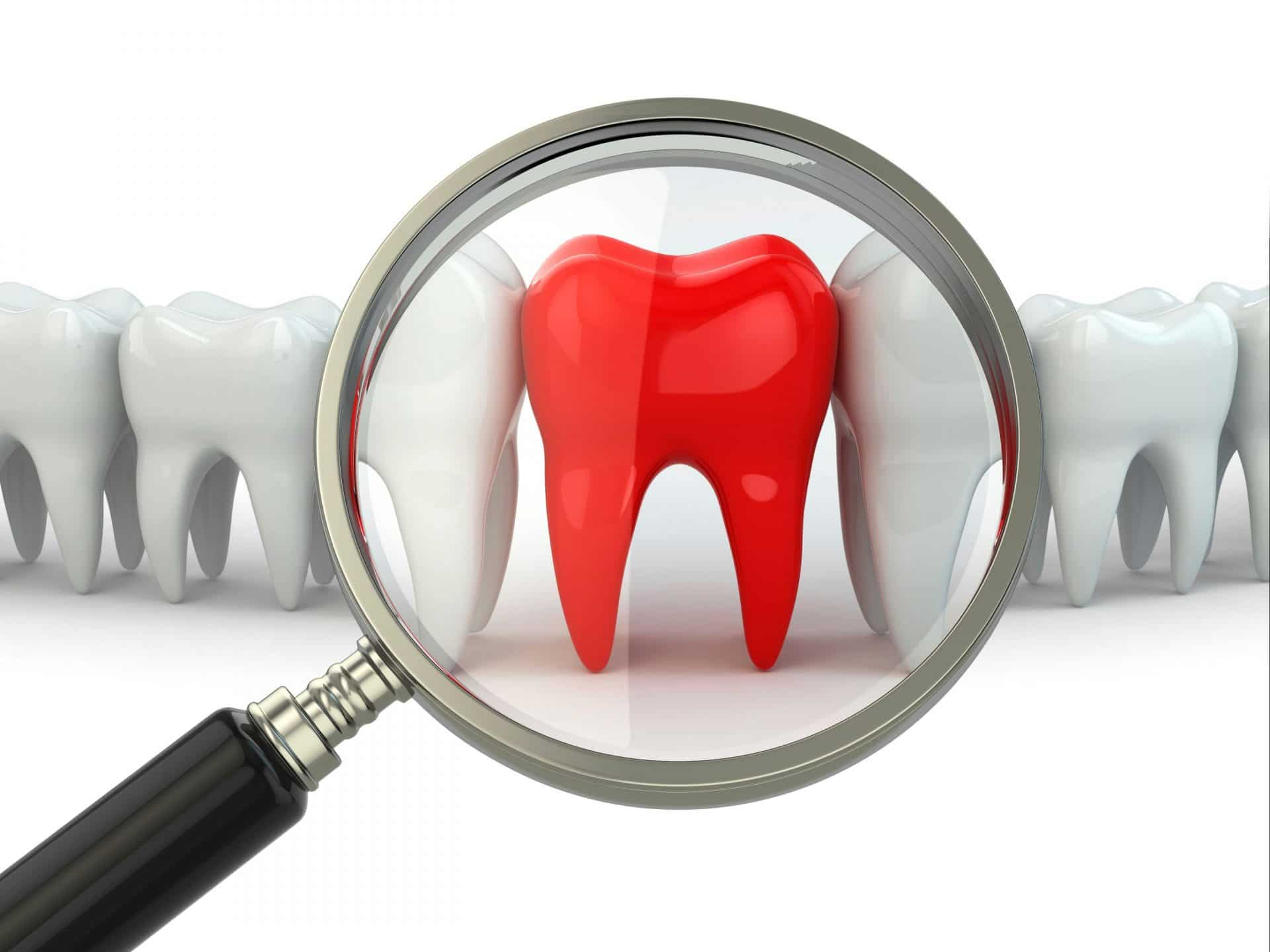 Wisdom tooth removal in St Louis by St Louis South oral surgery