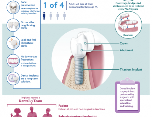 What Are Dental Implants? A Long Term Solution To Replace Missing Teeth