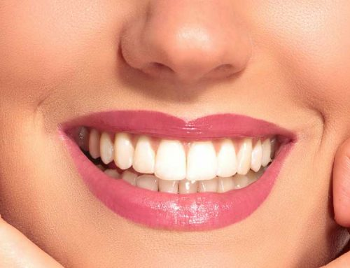 Tooth Replacement To Improve Your Smile