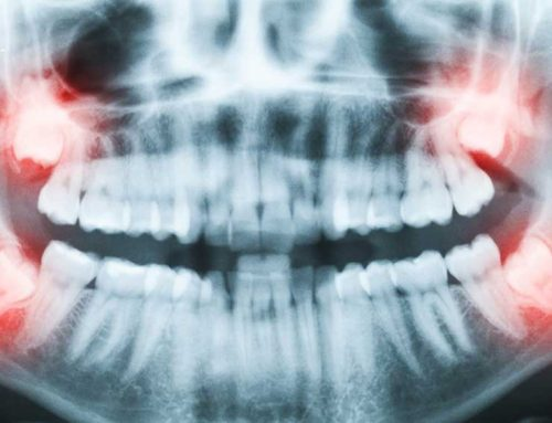Wisdom Tooth Removal, And What You Should Know