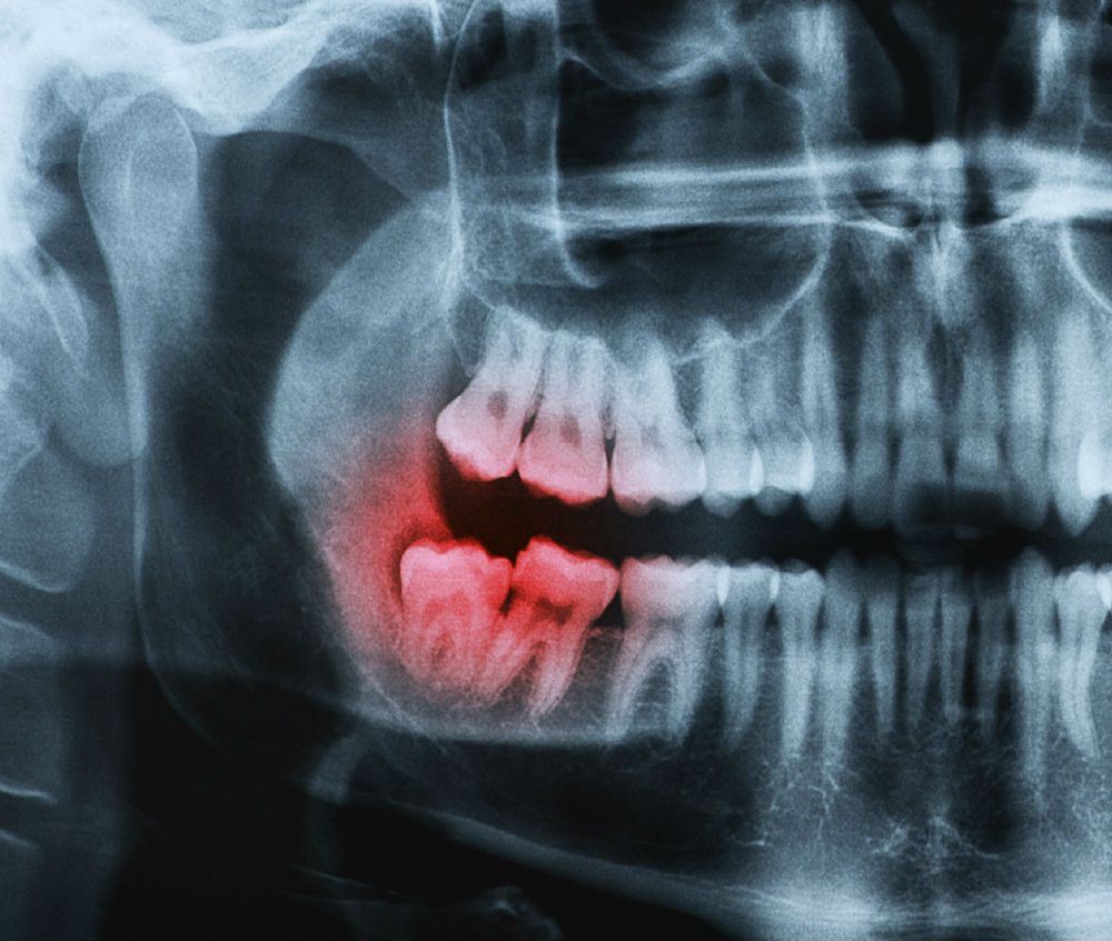 Sidebar » Oral Surgery In St. Louis